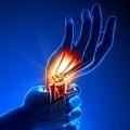 Kéz ortézisek